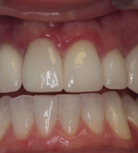 dental-implants-02-after
